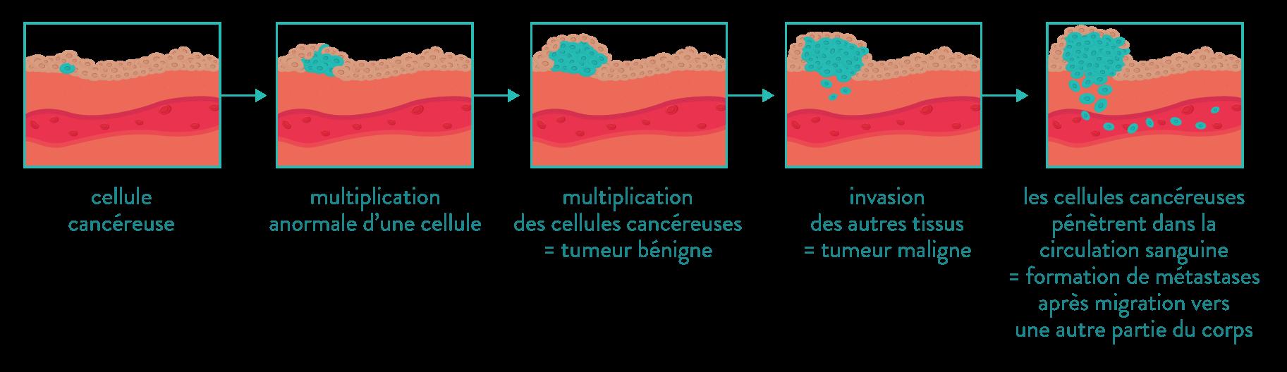 cancer cellules cancéreuses tumeur métastases